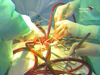 операция сердце