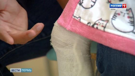 В пермском батут-центре ребёнок получил двойной перелом голени